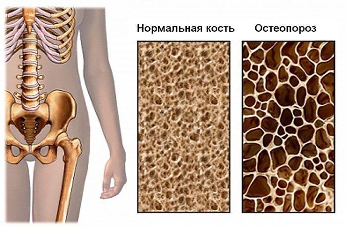 Кислые продукты выводят из организма минералы. возникает остеопороз.