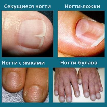 Ногти в форме ложки, ногти вогнутые, ногти с ямками, ногти-булава