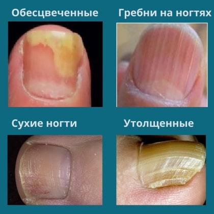 Признаки болезней о которых сигнализируют ногти