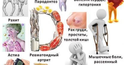 Симптомы дефицита витамина D